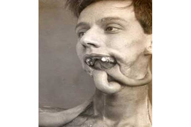...to give disfigured soldiers a new face.