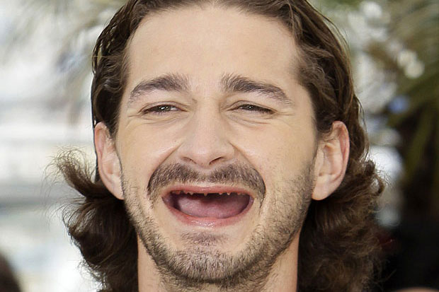 Famous People without Teeth