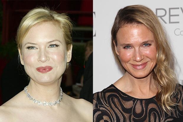 Renee Zellweger's Changing Face Transformation